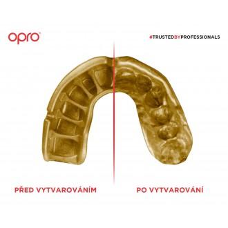 Opro Gold Chránič na zuby - Čierny